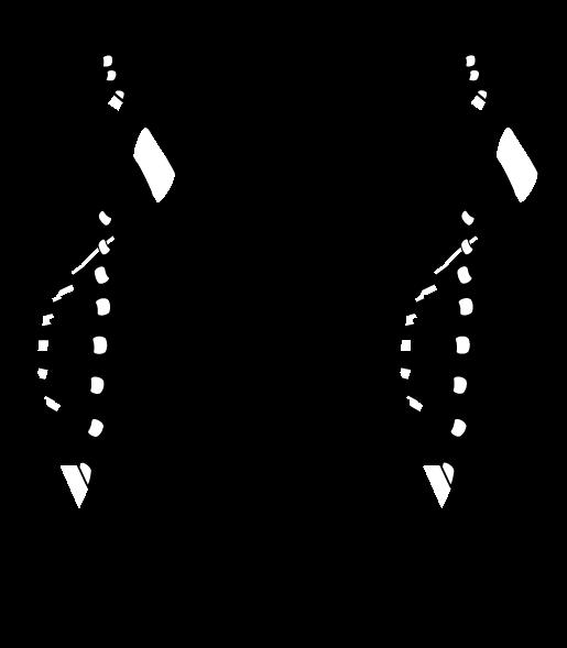 Germicidal UVC DNA Damage